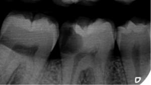 Risparmiare dal dentista - Immagine 1