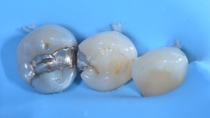 Frattura del dente - Intarsio iniziale