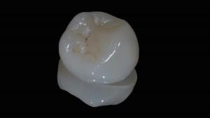 Frattura del dente - Intarsio su specchio