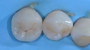 Frattura del dente - Intarsio cementato