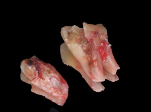 Frattura del dente - Estrazione