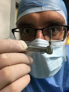 Rigetto impianti - chirurgo implantare