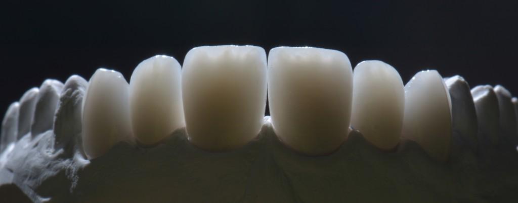 Ceramica integrale - Faccette su modello