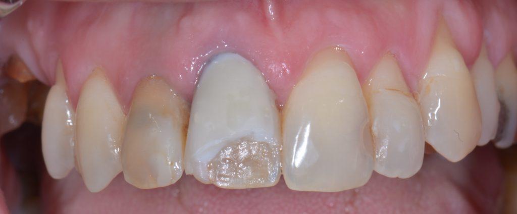 Prima visita dal dentista - Faccetta staccata