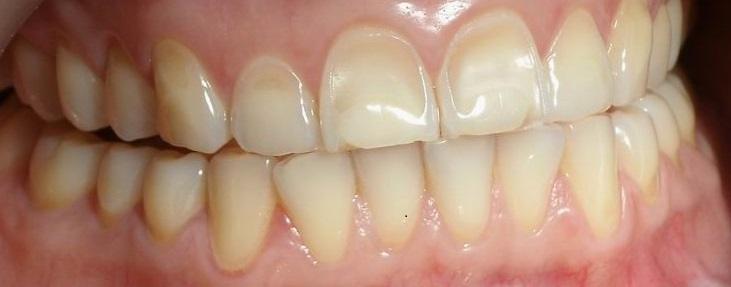 sbiancamento dentale - erosione dentale