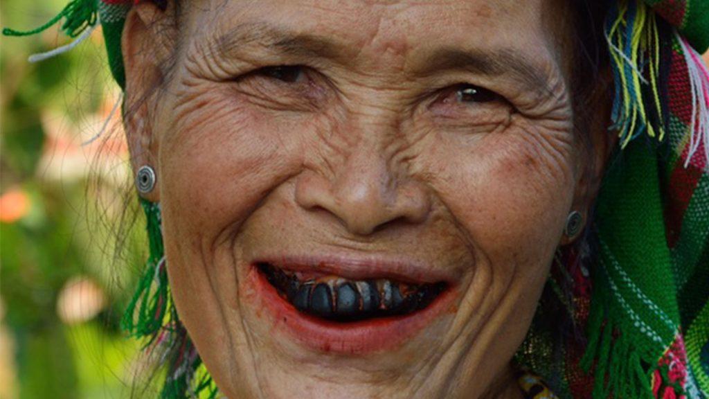 sbiancamento dentale - denti scuri