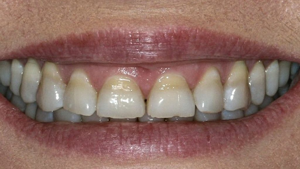 sbiancamento dentale - discromia da tetracicline